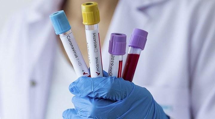 Çin, Covid-19'un kökeninin belirlenmesi amacıyla Wuhan'daki binlerce kan örneğini test edecek