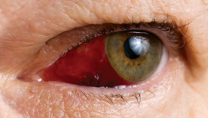 Göz tansiyonu (glokom) tedavisinde erken tanı hayat kurtarıyor!