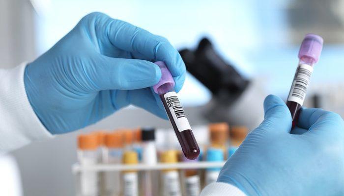 Kanser: İngiltere'de 50'den fazla kanser türünü erken teşhis etmesi umulan kan testi deneniyor