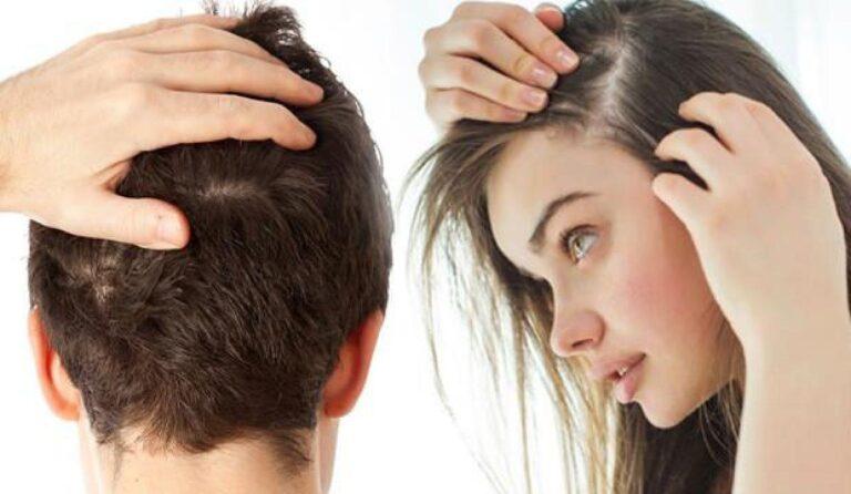 Saç dökülmesi neden olur? Farklı tedavi yöntemleri