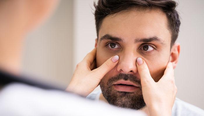 Sinüzit belirtileri nedir, tedavisi nasıl olur? Baş ağrısı nedenler arasında yer alıyor